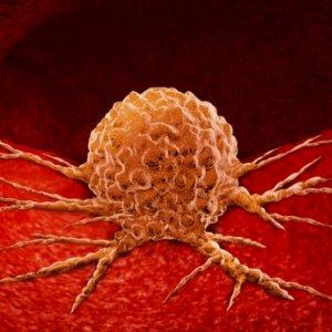 Rákbetegség és cukor - a rák kiéheztetésének stratégiája