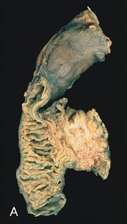hasnyálmirigyrák daganat marker)