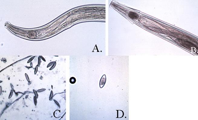 Graham-bizonyító teszt pinworms