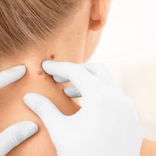 hpv escharoticus kezelés