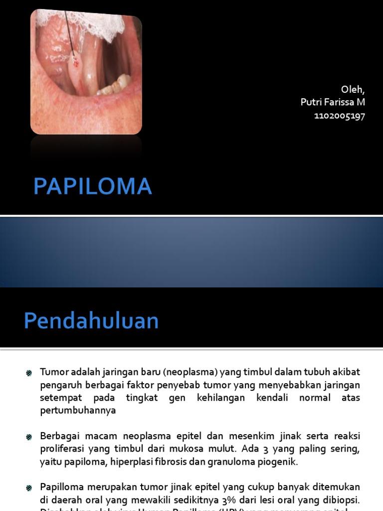 tumor papilloma adalah)